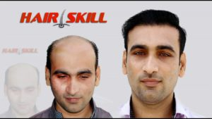 Hair replacement center in Pakistan